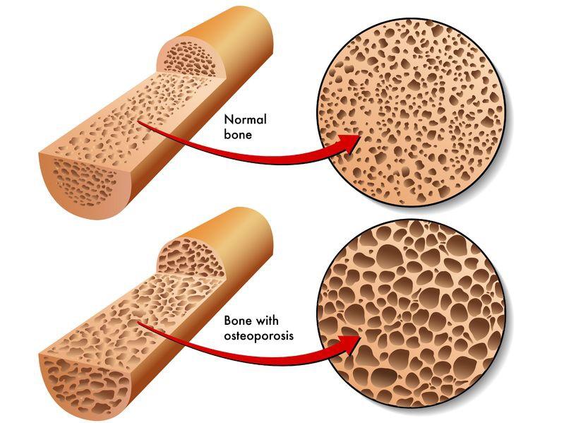 osteoporoticbone15472526_m